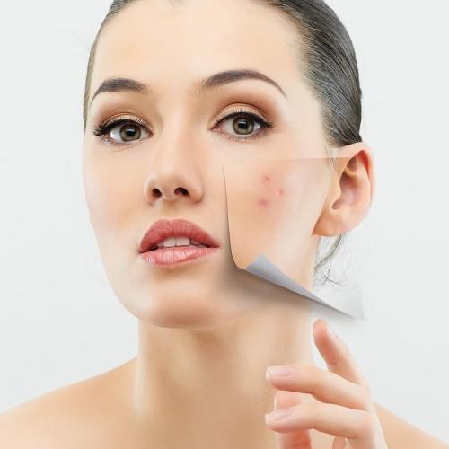 #dicasdatrasnsamérica por Giovana Morbi: que alimentos devo evitar para melhorar e prevenir a acne?